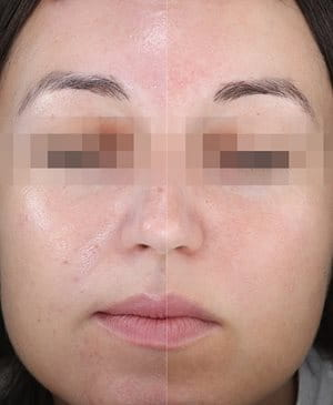 Woman's face before and after split-face application